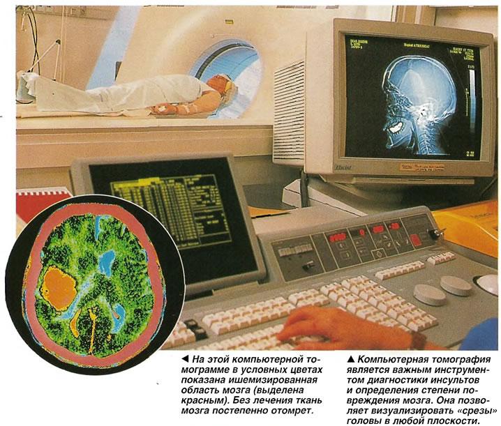 Компьютерная томограмма
