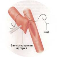 Конец левой внутренней грудной артерии