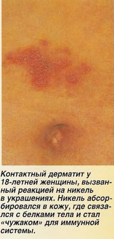 Контактный дерматит, вызванный реакцией на никель в украшениях
