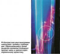 Контрастная рентгенограмма показывает тромбоз глубоких вен