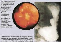 Контрастная рентгенограмма желудка