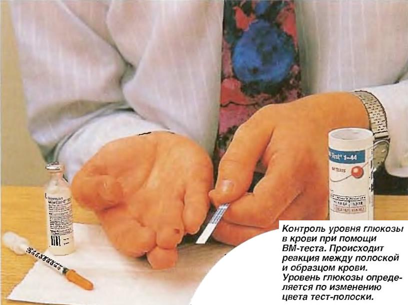 Контроль уровня глюкозы в крови при помощи ВМ-теста