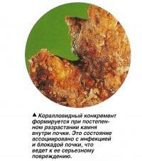Коралловидный конкремент формируется при постепенном разрастании камня внутри почки