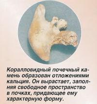 Коралловидный почечный камень образован отложениями кальция