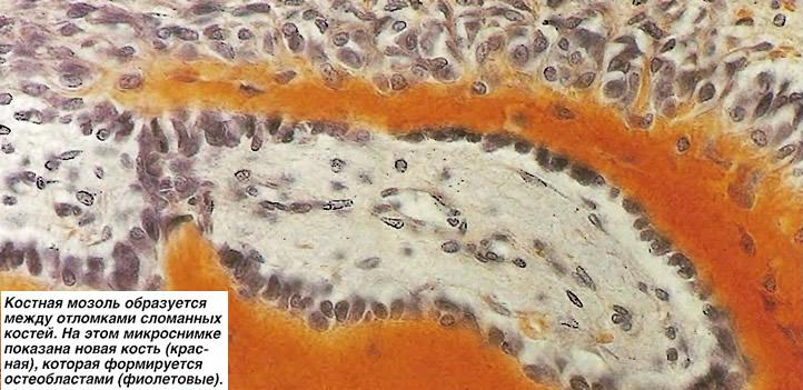 Костная мозоль образуется между отломками сломанных костей