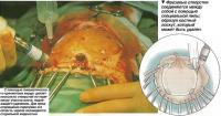 Краниотомия