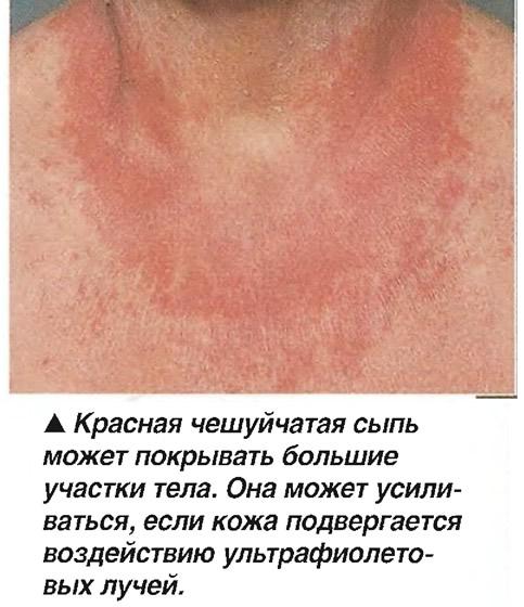 Красная чешуйчатая сыпь может покрывать большие участки тела