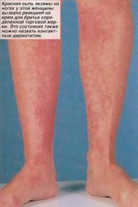 Красная сыпь экземы на ногах у женщины вызвана реакцией на крем для бритья