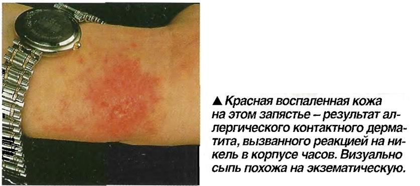 Красная воспаленная кожа на этом запястье - результат аллергического контактного дерматита