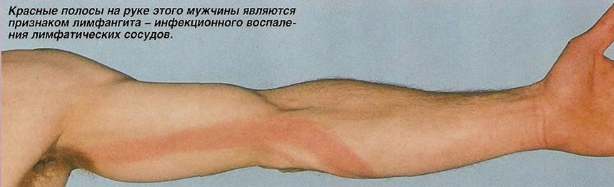 Красные полосы на руке этого мужчины являются признаком лимфангита