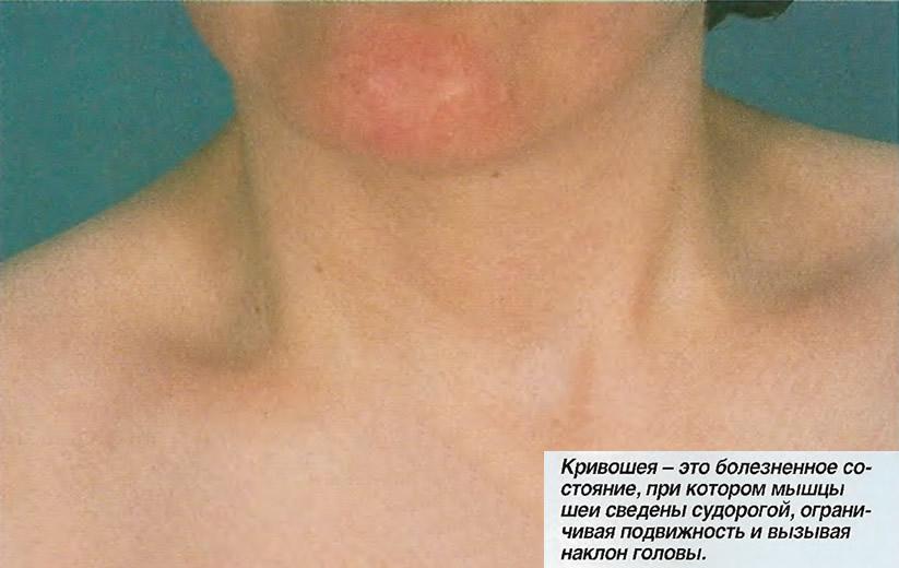 Кривошея - мышцы шеи сведены судорогой