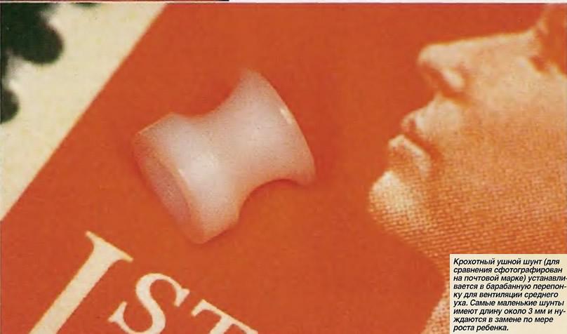 Крохотный ушной шунт (для сравнения на почтовой марке)