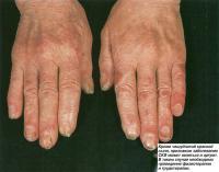 Кроме чешуйчатой красной сыпи, признаком заболевания СКВ может являться и артрит