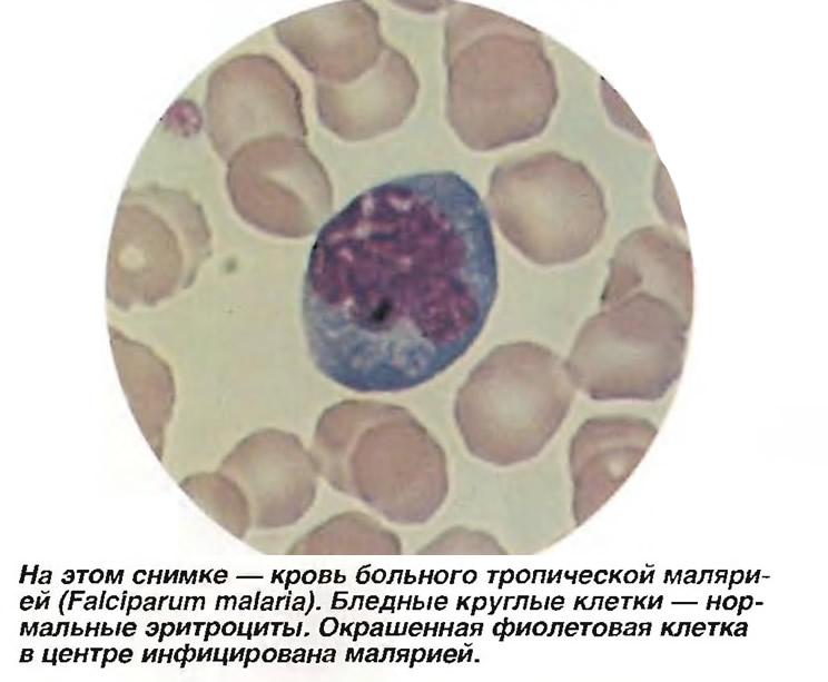Кровь больного тропической малярией (Falciparum malaria)