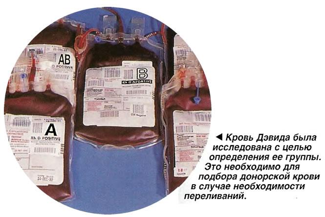 Кровь Дэвида была исследована с целью определения ее группы