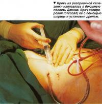 Кровь из разорванной селезенки изливалась в брюшную полость