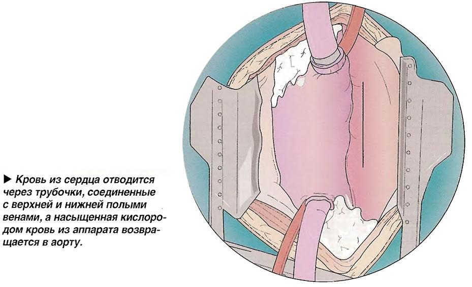 Кровь из сердца отводится через трубочки