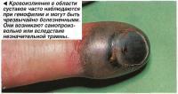 Кровоизлияния в области суставов