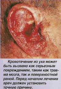 Кровотечение из уха может быть вызвано серьезным повреждением
