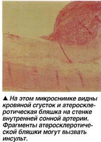 Кровяной сгусток и атеросклеротическая бляшка