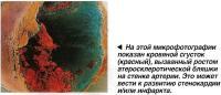 Кровяной сгусток (красный), вызванный ростом атеросклеротической бляшки на стенке артерии
