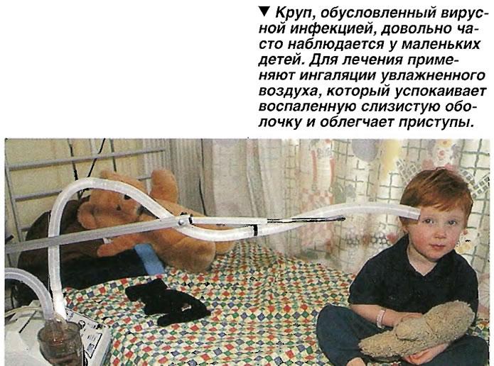 Круп, обусловленный вирусной инфекцией, довольно часто наблюдается у маленьких детей