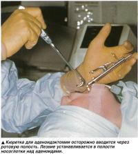 Кюретка для аденоидэктомии осторожно вводится через ротовую полость