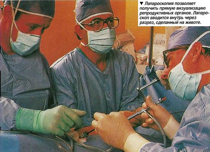 Лапароскопия позволяет получить прямую визуализацию репродуктивных органов