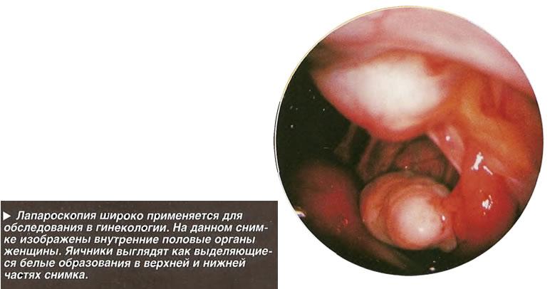 Лапароскопия широко применяется для обследования в гинекологии
