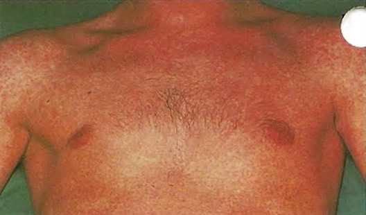Лечение антибиотиками часто вызывает характерную сыпь