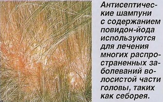 Лечение многих заболеваний волосистой части головы, таких как себорея