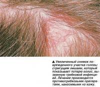 Лечение производится противогрибковыми препаратами, наносимыми на кожу