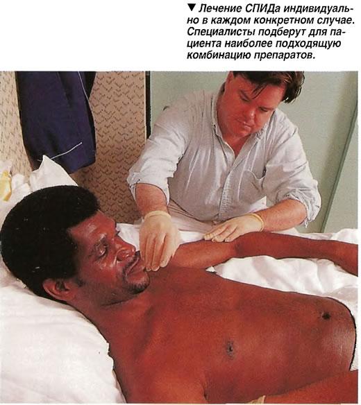 Лечение СПИДа индивидуально в каждом конкретном случае.