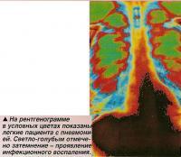 Легкие пациента с пневмонией