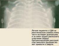 Легкие пациента с СДН на рентгеновском снимке