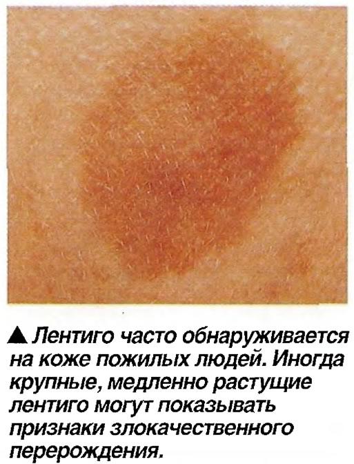 Лентиго часто обнаруживается на коже пожилых людей