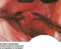 Левая миндалина захватывается пинцетом и осторожно оттягивается по направлению к срединной линии