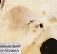Левая половина средней черепной ямки и четыре отверстия
