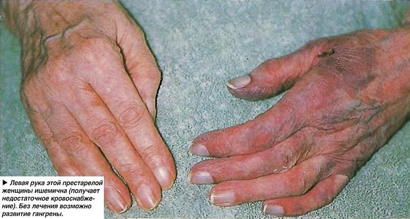 Левая рука этой престарелой женщины ишемична