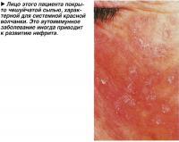 Лицо этого пациента покрыто чешуйчатой сыпью, характерной для системной красной волчанки