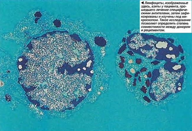 Лимфоциты взяты у пациента, прошедшего лечение специфическими антителами