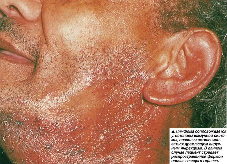 Лимфома сопровождается угнетением иммунной системы