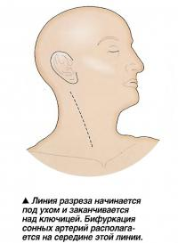 Линия разреза начинается под ухом и заканчивается над ключицей