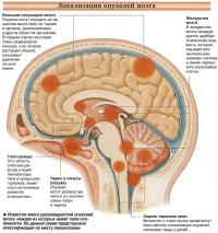 Локализация опухолей мозга