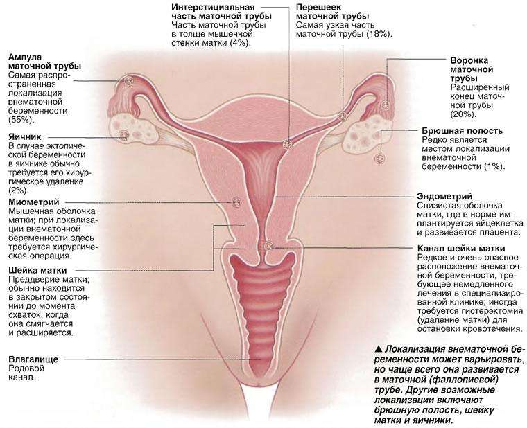 Локализация внематочной беременности