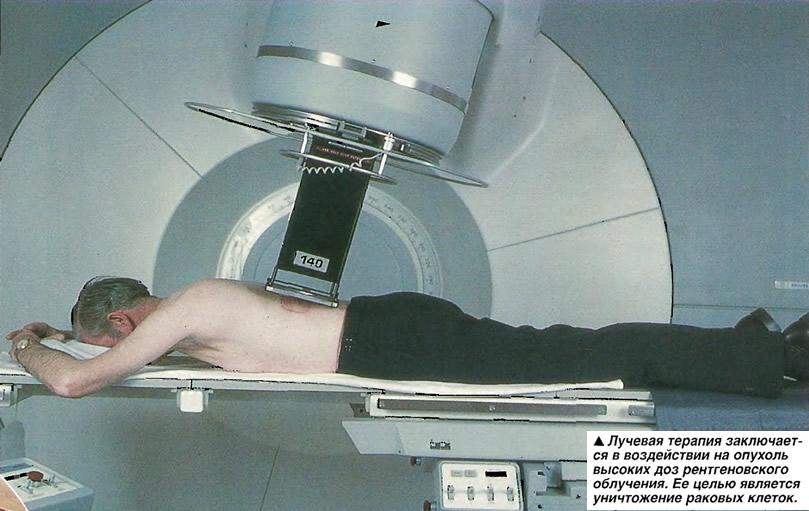 Лучевая терапия заключается в воздействии на опухоль высоких доз рентгеновского облучения