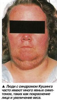 Люди с синдромом Кушинга часто имеют много явных симптомов