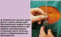 Люмбальная пункция проводится с целью забора цереброспинальной жидкости