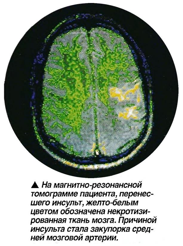 Магнитно-резонансная томограмма пациента