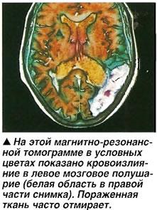 Магнитно-резонансная томограмма
